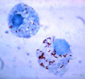 Rickettsia rickettsii, the causative agent of Rocky Mountain spotted fever.
